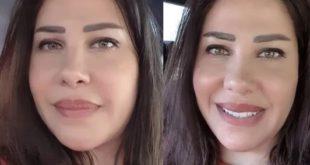 صورة شقيقة نانسي عجرم نادين عجرم بعد التجميل تثير الجدل 1